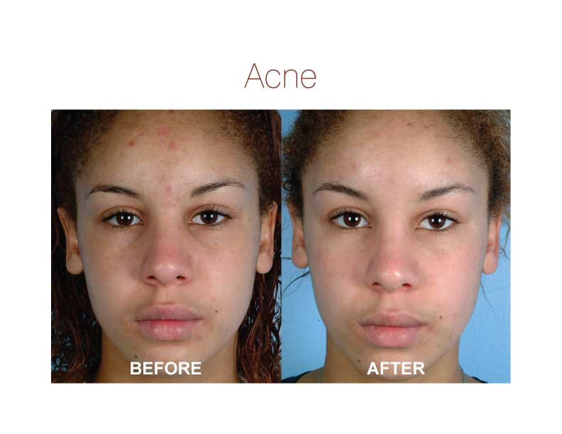 accutane you many take should how months